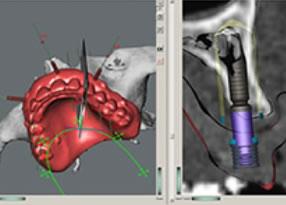 implantologia_01
